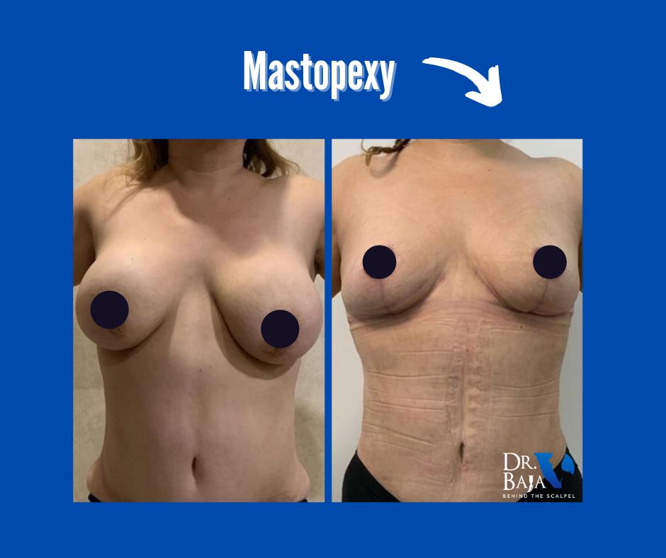 Mastopexy